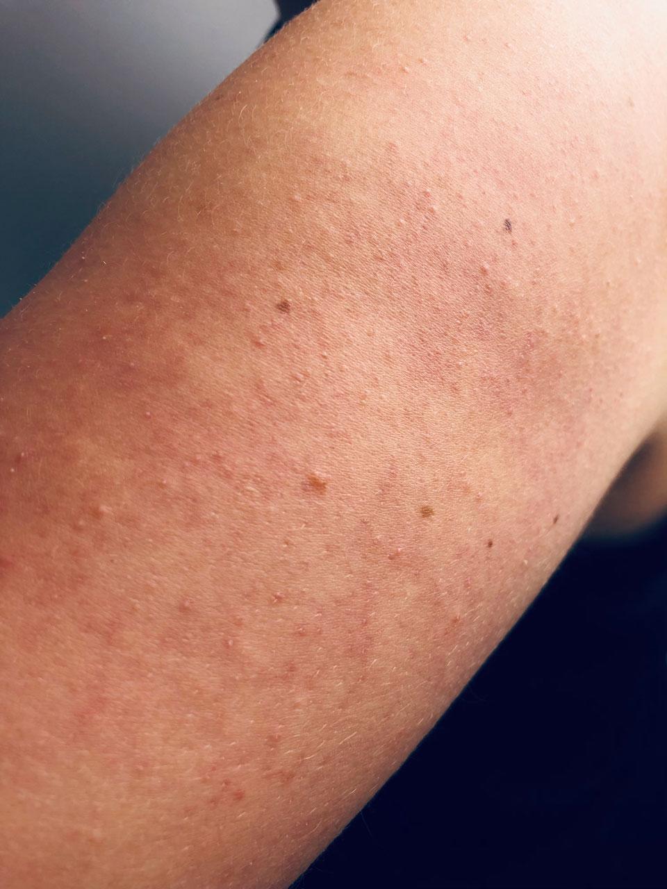 Reibeisenhaut, Keratosis Pilaris, Verhörnungsstörung, Pickel an den Oberarmen, Beauty Tipps, Hautpflege, ElisaZunder Blogazine,